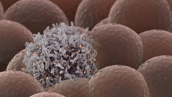 Крупный успех в лечении меланомы на поздней стадии: Выживает свыше 50% больных!